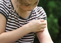Proven_Insect_Repellent_Itch_girl_bug_bites_